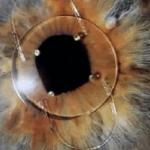 Iris clip lens implant