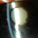 Hypermature cataract