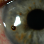 Metallic corneal foreign body