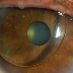 Hard contact lens