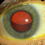 Subluxed lens