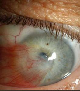 Pterygium across pupil